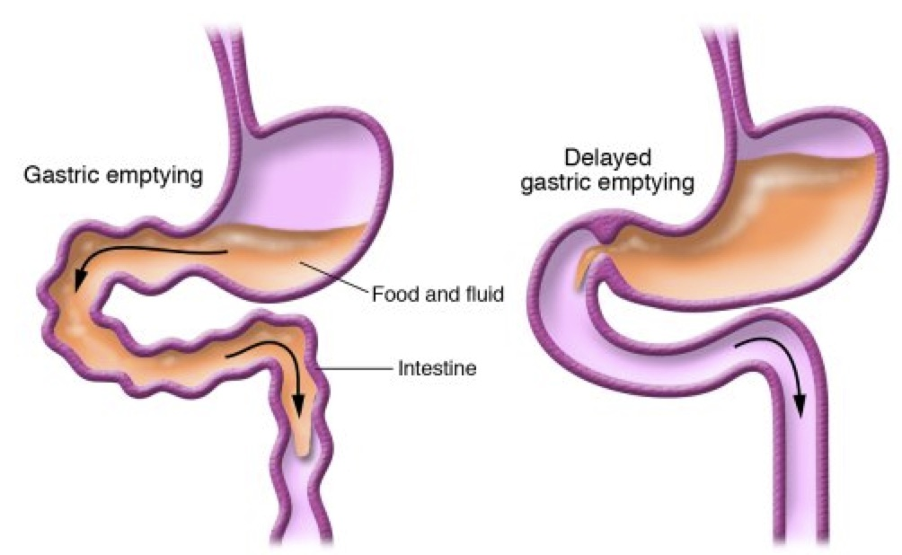 Causes of SIBO - gastric emptying